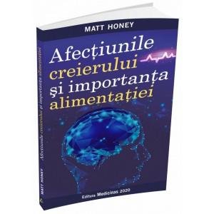 CEBRAOPTIM - Pachet 2 luni + GRATUIT cartea Afecțiunile creierului și importanța alimentației